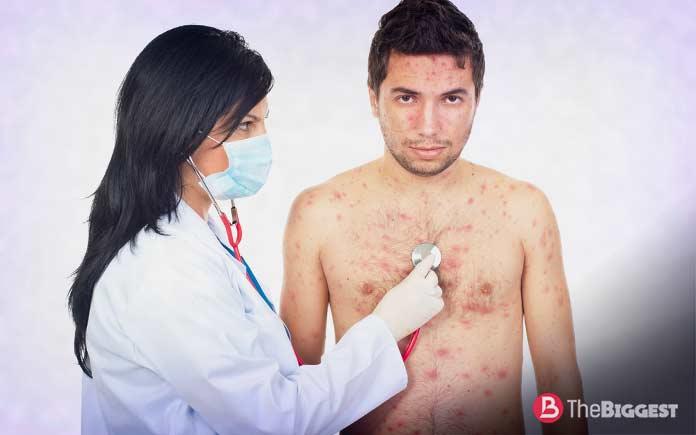 Очень опасные вирусы: Оспа