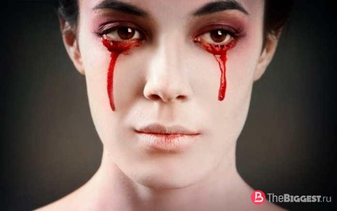 Гемолакрия. Необычные болезни глаз
