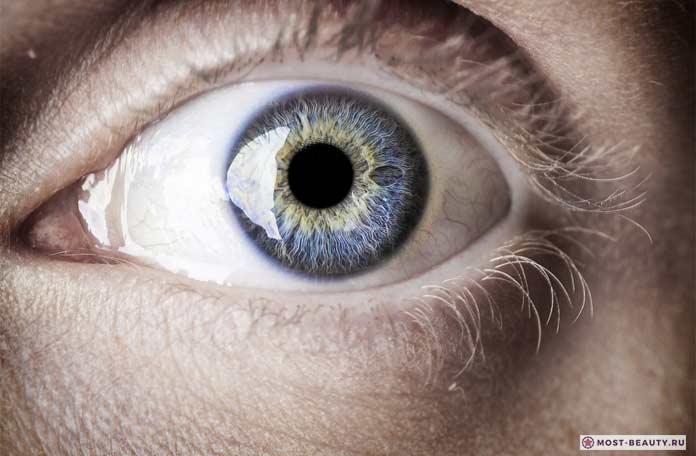Паралич глаза
