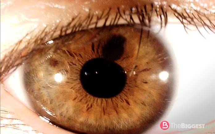Поликория. Заболевание глаза