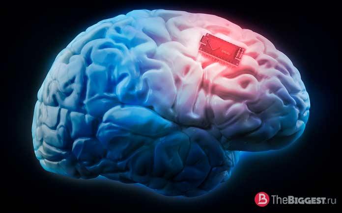 Электронные мозговые имплантаты