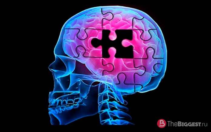 Нейрогенез