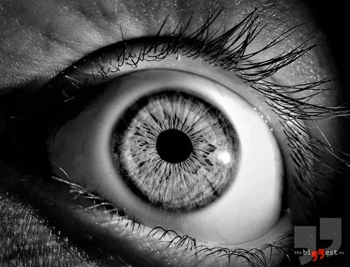 Оптофобия и глаз. CC0