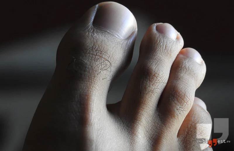 Большой палец ноги. CC0