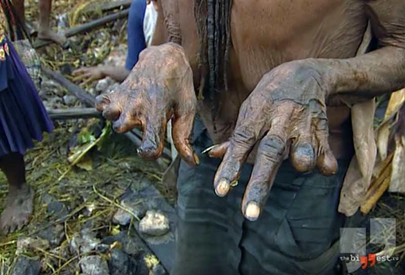 Пальцы без фаланг